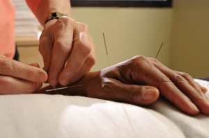 Acupuncture-hand